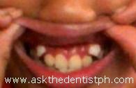 Oyaah's Teeth